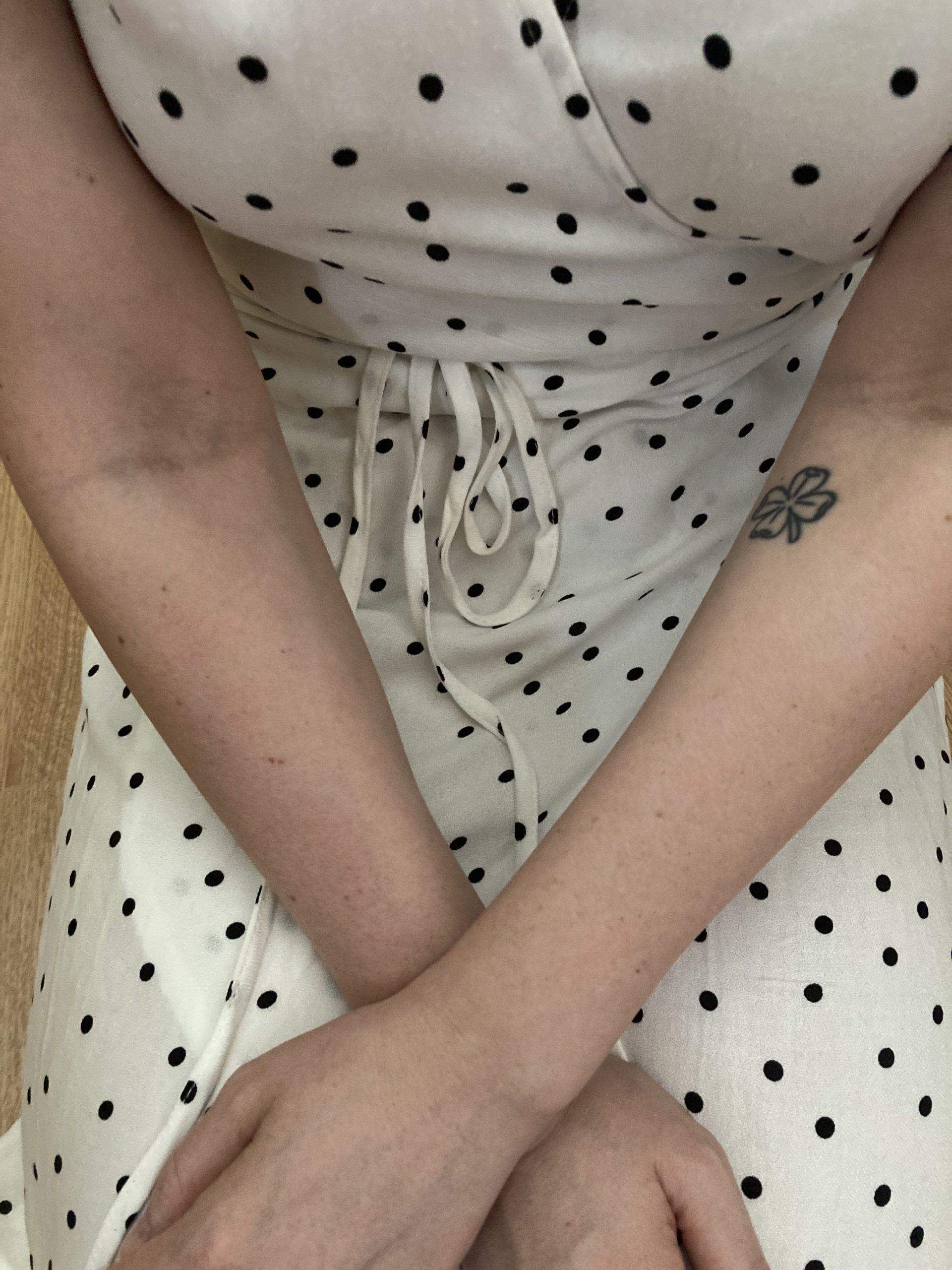 efekty po depilacji ręce