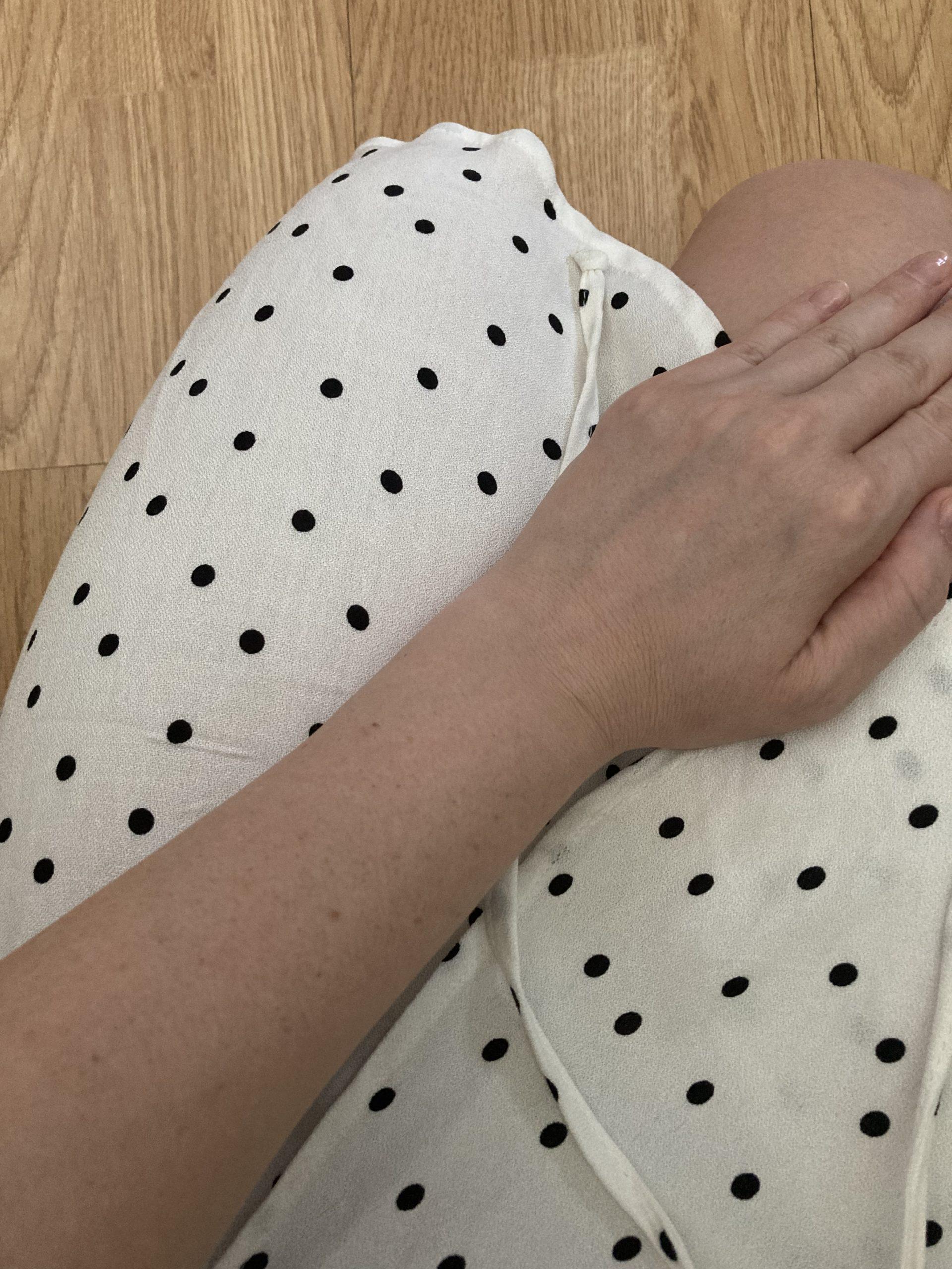efekty po depilacji zbliżenie na rękę